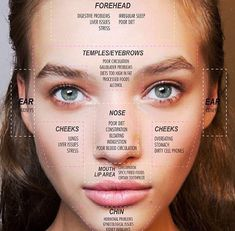 What is Acne? Acne ( acne vulgaris , common acne ) is a disease of the hair follicles of the face, chest, and back that affects almost al. Beauty Care, Beauty Skin, Health And Beauty, Beauty Hacks, Beauty Tips, Diy Beauty, Beauty Ideas, Face Beauty, Beauty Products