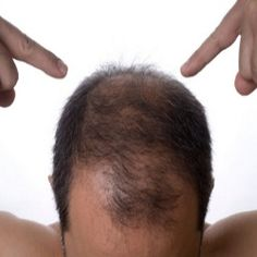 How To Cure Bald Spots