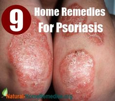 9 Effective Home Remedies For Psoriasis