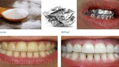 Wrap Your Teeth with Aluminium Foil and See the Magic!