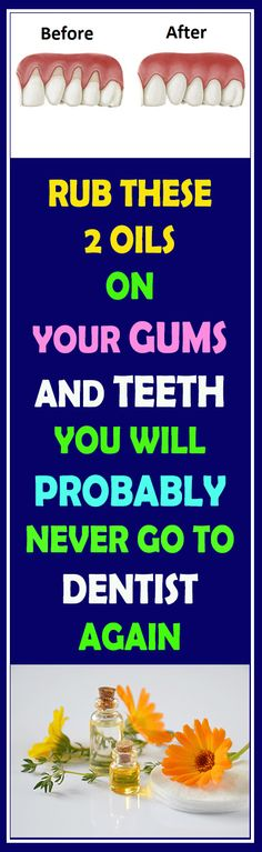 Rub These Two Oils On Your Gums And Teeth And You Probably Will Not Need To Go To Dentist Again #health # Dentist #fitness #beauty