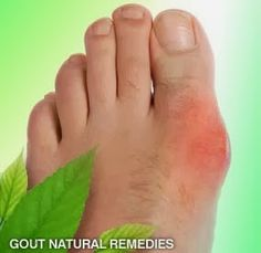 Brakely.Com: 10 Home Remedies for Gout Pain
