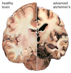 Alzheimer's Disease is Caused by Diet