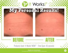 My WOW (Wipe Out Wrinkles) results!!