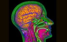 A thermal image of a brain: Vitamin B 'can rewire stroke patients' brain', study finds Healthy Brain, Brain Health, Recovering From A Stroke, Stroke Recovery, Healthy Cholesterol Levels, Normal Blood Pressure, Brain Injury, Medical Prescription, Vitamins