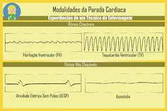 Básico das ondas do eletrocardiograma