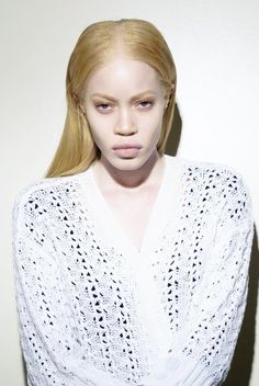 albinism | Tumblr