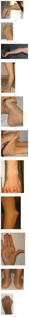 Ehlers-Danlos Syndrome, Hypermobility Type: An Underdiagnosed Hereditary Connective Tissue Disorder with Mucocutaneous, Articular, and Systemic Manifestations