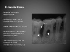 149 best Oral Radiology images on Pinterest in 2018   Radiology ...