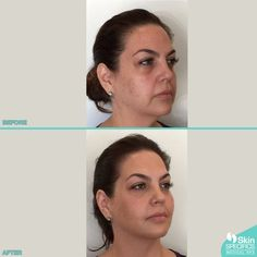 Early 40's. After 75 lb weight loss mid face and cheek lifting with juvederm voluma 4 syringes Lower face juvederm ultra plus XC 3 syringes.   For complimentary consultations call: (310) 481-0058  #skinspecifics #fillers #juvederm #botox #belotero #voluma #losangelesbotox #restylane #juvedermultraplus #juvedermultra #dysport #restylanelyft #bestoftheday #nonsurgicalfacelift #results #nonsurgical #beforeandafter #skinrejuvenation