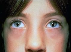 Bilateral coloboma (defect of tissue of the eye)