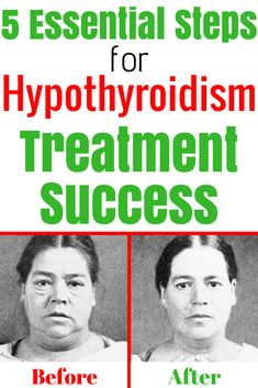 5 Essential Steps for Hypothyroidism Treatment Success. hypothyroidism treatment and hypothyroidism remedies.