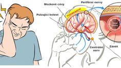 V jednoduchosti je síla: Jak díky soli zastavit migrénu doslova za okamžik
