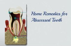 Most preferred home remedies for abscessed tooth and it is guaranteed to provide you with complete relief from the tooth ache.
