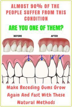 Top Ways To Achieve Gum Health - Using an electric toothbrush one of the way to achieve gum health. Most famous Tools is Philips Sonicare Gum Health Pro. Gum Health, Teeth Health, Healthy Teeth, Dental Health, Oral Health, Dental Care, Home Remedies For Flu, Flu Remedies, Natural Home Remedies