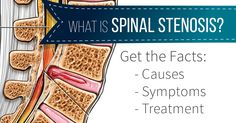 Have you been experiencing a shooting pain, numbness or weakness in your leg or buttocks? Do you have trouble standing for extended periods of time? There is a chance that you might be suffering from spinal stenosis. Spinal Canal, Human Spine, Degenerative Disc Disease, Spinal Stenosis, Chronic Pain, Facts, Knowledge, Fibromyalgia
