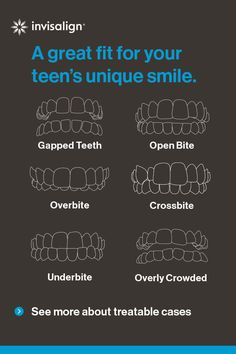 Invisalign® treatment for teens is clinically proven to be effective for a broad range of teeth-straightening cases, from mild to complex. Find out today why it could be a great option for your teen!
