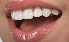 5 очень простых рецептов сделать свои зубки белее: 1. Нанесите поваренную соль на зубы, потрите, …