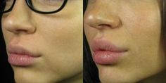 Lips with Juvederm - my next mission!  I actually got Elgin in board with this idea! So excited! !~SculptMD 514.728-5783