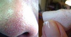 Você sofre com cravos no nariz? Se a resposta for positiva, saiba que há um método simples e caseiro de removê-los!