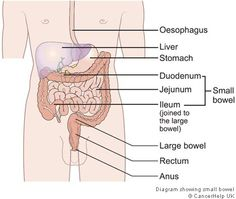SMALL BOWEL CANCER - Cancers of the small bowel are rare, with around 1,000 people diagnosed in the UK each year, compared to more than 41,000 large bowel and rectal cancers. Tumours of the small bowel may be either non-cancerous (benign) or cancerous (malignant). Find out more on our website: http://www.cancerresearchuk.org/cancer-help/about-cancer/cancer-questions/small-bowel-cancer-question#