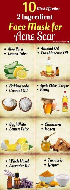 10 Most Effective 2 Ingredient Face Mask For Acne Scar - Face Mask for acne Scars and oily Skin - Homemade face Masks for acne scars and Blackheads Homemade Scar Removal Cream Pimple Mask, Face Mask For Pimples, Acne Face Mask, Skin Mask, Face Masks, Face Skin, Back Acne Remedies, Scar Remedies, Homeopathic Remedies