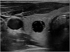 2 Colloid cysts in the right thyroid lobe