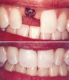 Before and After pictures of a dental implant. Patient was missing a single tooth.