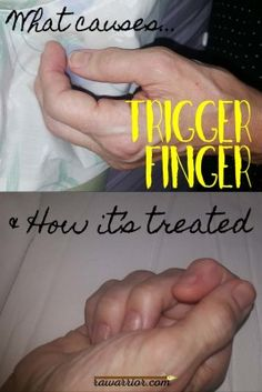"""Trigger Finger in Rheumatoid Arthritis """"If you are a person living with rheumatoid disease (PRD), you have probably noticed joints catching or resisting movement, and possibly had it explained away as just 'RA stiffness.' But the cause of RD /RA stiffness is not known, and it is likely related to tenosynovitis."""""""