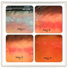My husband was burned with Sulfuric Acid this week at work. I've been applying Plexus body cream along with scrubbing everyday, and in 7 days his 3rd degree burns are almost healed! Thank you, Lord for Plexus!!! Go Plexus!!!