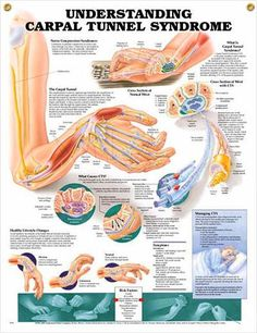 Carpal Tunnel Syndrome - RSI and/or Muscular Irritation (sometimes as high up as Subscapularis) is more common.
