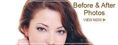 Blepharoplasty Gallery, Eyesthetica