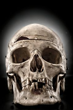 Real Skull, Anatomy Photography, 8x12 Fine Art Print, Desaturated, Bone, Dark, Macabre - My Thick Skull. $30.00, via Etsy.