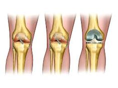 Lift up your spirit from a bad injury with world's best Knee reconstruction surgery under the guidance of an expert orthopaedic surgeon in the city. The only solution to fast a recovery!