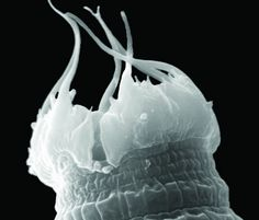 These tenacious microorganisms are the only survivors of a vanished world. They survived the ice age and now live in one of the harshest environments--Antarctica!