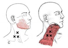 Platysma | The Trigger Point & Referred Pain Guide
