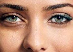 Uleiul de ricin foarte benefic pentru piele si par - We Beauty Castor Oil, Leiden, Concealer, Beauty, Skin Care Products, Productivity, Therapy, Plant, Helpful Tips