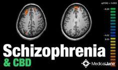 Study: CBD-Based Therapy May Help Treat Schizophrenia   < 470° us (invite-) https://de.pinterest.com/will_robins/cbd-articles