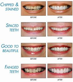 Benefits for Dental Implants in India....