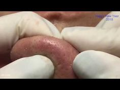 Amazing Blackhead, How to blackheads and whiteheads extraction -Acne Treatment 01 - 01 - YouTube