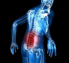 Dealing With Lumbar Spinal Stenosis