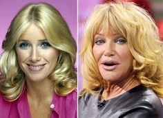 Suzanne Somers denies getting any work done to her face, but the actress definitely looks different than she did in the late She is accused of having her cheeks plumped up, a nose job, a facelift, brow lift and lip injections. Extreme Plastic Surgery, Botched Plastic Surgery, Bad Plastic Surgeries, Plastic Surgery Gone Wrong, Plastic Surgery Procedures, Cosmetic Procedures, Bad Celebrity Plastic Surgery, Suzanne Somers, Bioidentische Hormone