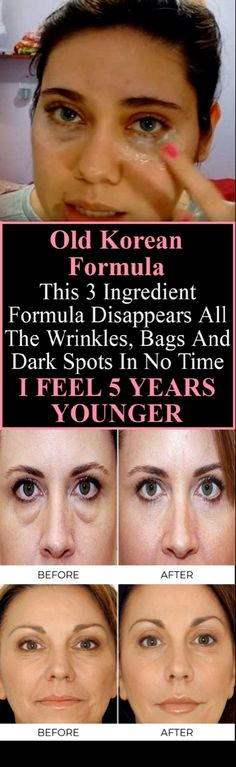 Old Korean Formula This 3 Ingredient Formula Disappears All The Wrinkles, Bags A. Old Korean Formula This 3 Ingredient Formula Disappears All The Wrinkles, Face Care, Body Care, Beauty Care, Beauty Skin, Beauty Secrets, Beauty Hacks, Beauty Advice, Beauty Ideas, Les Rides