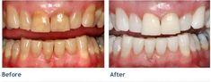 Cosmetic Dentist in Las Vegas Image - Mundpflege & Zahnaufhellung Teeth Whitening System, Best Teeth Whitening, Whitening Kit, Dental Surgery, Dental Implants, Nose Surgery, Dental Hygienist, Dental Teeth, Health Tips