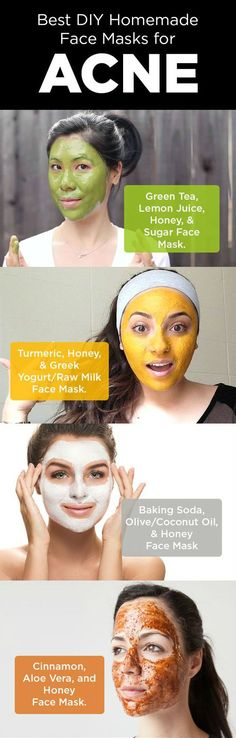 Face Masks for Acne Natural DIY Homemade Face Masks to Cleanse your Skin Here are some best ways of applying face masks to cleanse your skin and thereby to clear acne and its scars. #FaceMasks #ACNE #Scars #DIYRemedies #homemadefacemasksforwrinkles