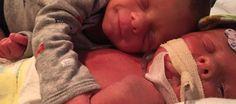 Muere a los pocos días de nacer uno de los gemelos de la foto que se ha vuelto v... - http://www.vistoenlosperiodicos.com/muere-a-los-pocos-dias-de-nacer-uno-de-los-gemelos-de-la-foto-que-se-ha-vuelto-v/