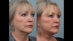 An amazing patient of Dr. Edwin Williams shares how she is feeling after giving herself a gift, a lower lid #blepharoplasty with lipotransfers. https://www.youtube.com/watch?v=q0seyWaiijo #DrEdwinWilliams #eyelidsurgery #bagsundertheeyes #darkcircles
