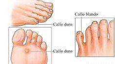 Te gustaría saber cómo eliminar esos molestos callos de los pies sin tener que acudir a comprar costosas cremas y tratamientos, que al final no eliminan la dureza de los pies.