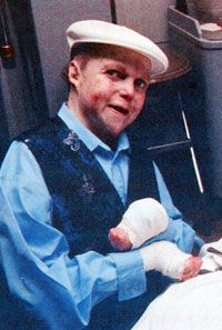 Jonny Kennedy (1966-2003) He had a condition known as dystrophic epidermolysis bullosa (EB or DEB). It's an inherited connective tissue disease causing blisters in the skin and mucosal membranes. As a result the skin is extremely fragile and minor mechanical friction or trauma will separate the layers of the skin and form blisters. People with this condition have an increased risk of cancers of the skin, which is what led to Jonny's death. He had a great sense of humor, strength of spirit…