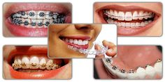 Dr Mukul Dabholkar is one of the best cosmetic dentist in Bandra Mumbai, India. We are provied more dental treatment service for example Root Canal Treatment, Dental Braces/Invisib Dental Veneers, Dental Braces, Dental Surgery, Dental Implants, Dental Posters, Invisible Braces, Teeth Straightening, Smile Design, Gowns